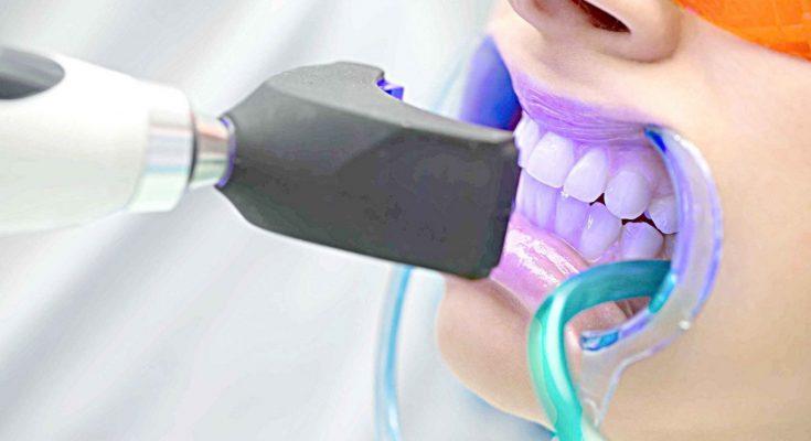 Clareamento Dental Com Led E A Opcao Mais Segura E Indolor Afirma